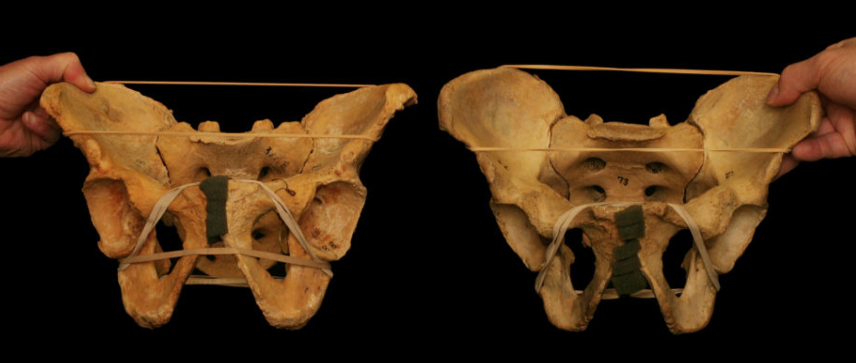 Hip-Anatomy-Squat-Edinburgh